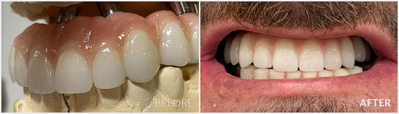Gold Coast Dental Implant Case 1 - Before and After