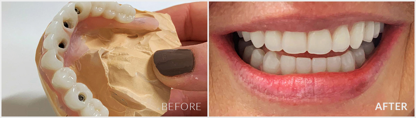 Gold Coast Dental Implant Case 2 - Before and After